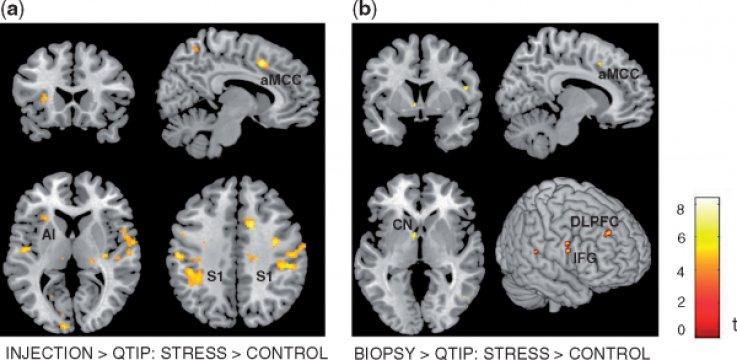 Стресс может увеличить уровень эмпатии